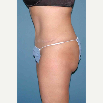 35-44 year old woman treated with No-Drain Tummy Tuck after 3649380