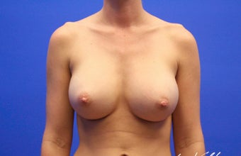 25-34 year old woman treated with Breast Implants after 3499864