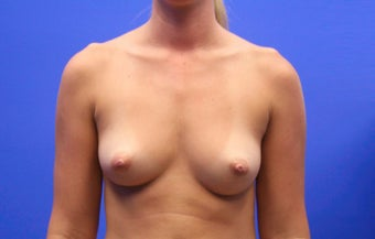 25-34 year old woman treated with Breast Implants before 3499864