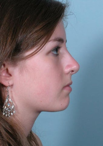 Rhinoplasty after 358870