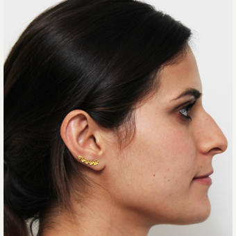 18-24 year old woman treated with Rhinoplasty before 3371969