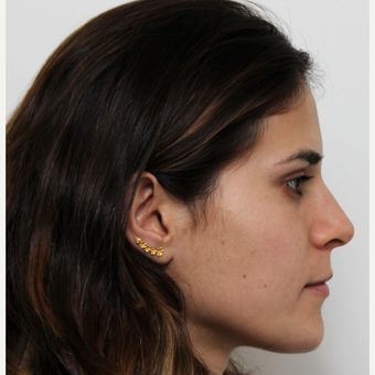 18-24 year old woman treated with Rhinoplasty after 3371969