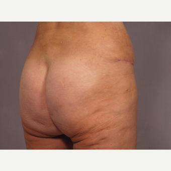 45-54 year old woman treated with Brazilian Butt Lift after 3308494