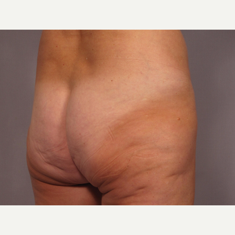 45-54 year old woman treated with Brazilian Butt Lift before 3308494