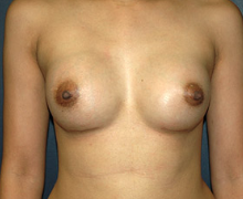 Breast Implants after 3545155