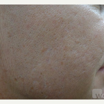 Acne scars treated with TCA CROSS