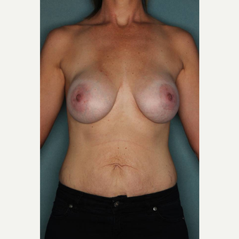 35-44 year old woman treated with Breast Augmentation after 3289193