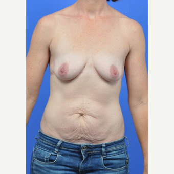 35-44 year old woman treated with Breast Augmentation before 3289193