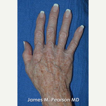 65-74 year old woman treated with Radiesse before 3814914