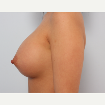 Breast Augmentation after 3345591