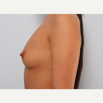Breast Augmentation before 3345591