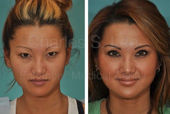 Asian Eyelid Surgery before 815777