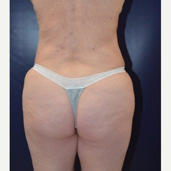 65-74 year old woman treated with Brazilian Butt Lift after 1830830