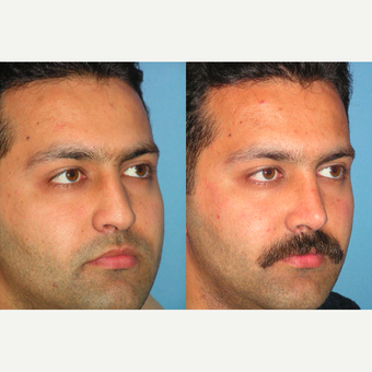 25-34 year old man treated with Rhinoplasty before 3521761