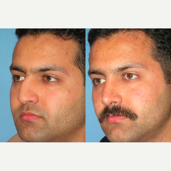 25-34 year old man treated with Rhinoplasty after 3521761