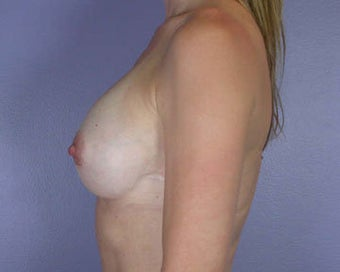 Breast Augmentation after 281430