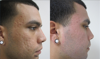 Fractional CO2 Resurfacing for Acne after 387836