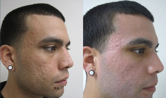 Fractional CO2 Resurfacing for Acne before 387836