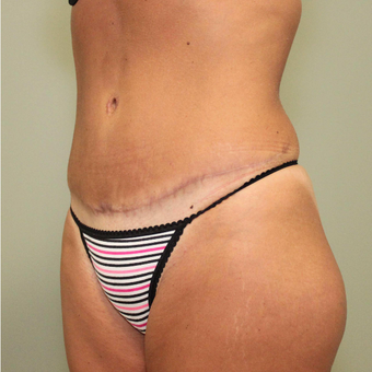 35-44 year old woman treated with Tummy Tuck after 3069728