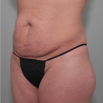 35-44 year old woman treated with Tummy Tuck before 3069728