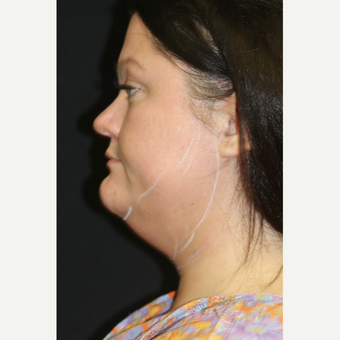 28 year old man treated with Chin Liposuction