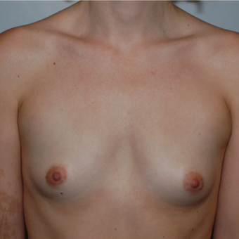 25-34 year old woman treated with Breast Augmentation before 3783670