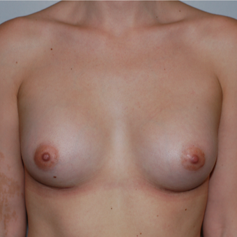 25-34 year old woman treated with Breast Augmentation after 3783670