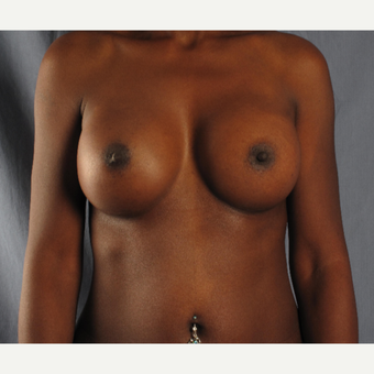 45-54 year old woman treated with Breast Augmentation after 3537493