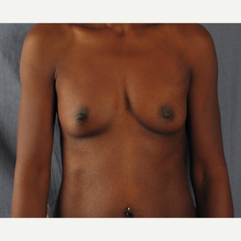 45-54 year old woman treated with Breast Augmentation before 3537493