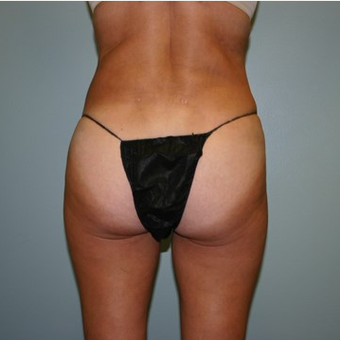 55-64 year old woman treated with Brazilian Butt Lift after 3667546