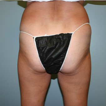 55-64 year old woman treated with Brazilian Butt Lift before 3667546