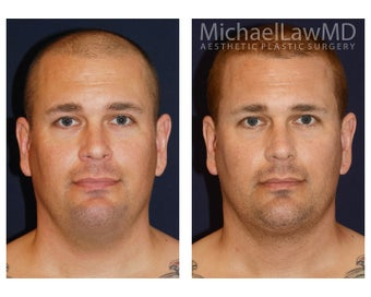 Necklift with Liposuction