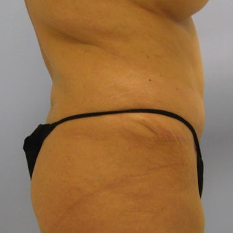 25-34 year old woman treated with Tummy Tuck Revision 1788723