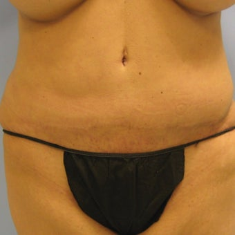25-34 year old woman treated with Tummy Tuck Revision