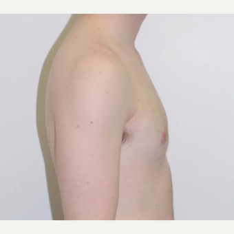 18-24 year old woman treated with Male Breast Reduction after 3383139