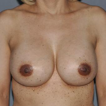 35-44 year old woman treated with Breast Augmentation after 3577381