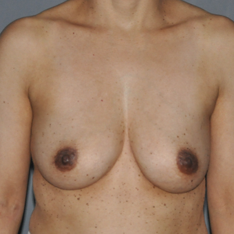 35-44 year old woman treated with Breast Augmentation before 3577381