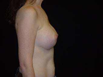35-44 year old woman treated with Breast Augmentation with Ideal Implant 3809005