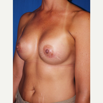 Breast Augmentation after 3744103