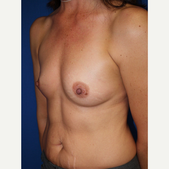 Breast Augmentation before 3744103