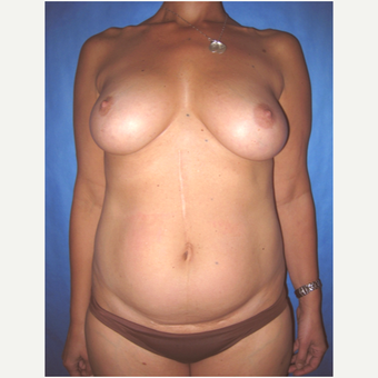 42 year old woman treated with nipple-sparing mastectomy and DIEP flap Breast Reconstruction before 3724497