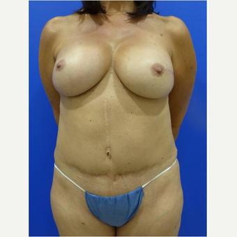 42 year old woman treated with nipple-sparing mastectomy and DIEP flap Breast Reconstruction after 3724497