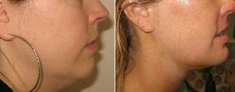 Neck Liposuction and Chin Implant before 69344