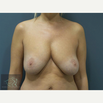 45-54 year old woman treated with Breast Implants before 3591241