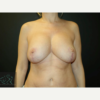 45-54 year old woman treated with Breast Implants after 3591241
