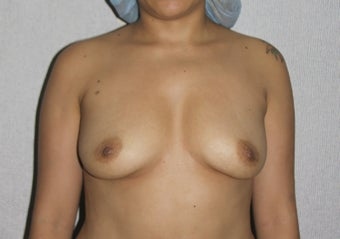 Peri-areolar breast argumentation before 1327786