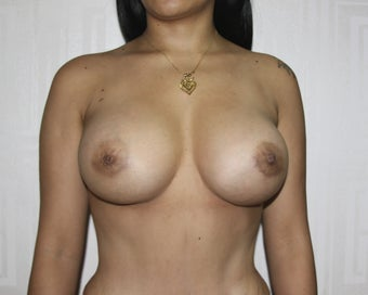 Peri-areolar breast argumentation after 1327786