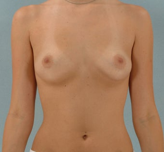27-Year-Old Female Breast Augmentation  before 1489096