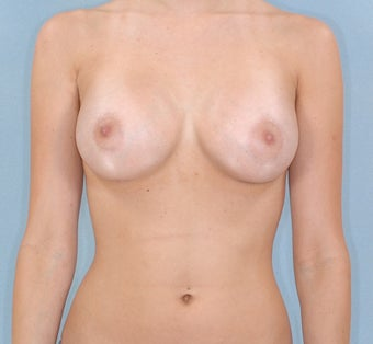 27-Year-Old Female Breast Augmentation  after 1489096