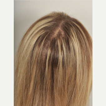 65-74 year old woman treated with PRP for Hair Loss after 3615622